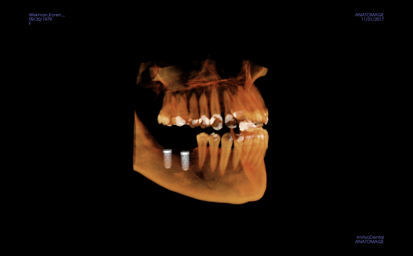 Kori mandibular implants